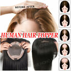 Natural Clip in 100% Remy Human Hair Silk Top Topper Piece Hairpiece Wig Toupee